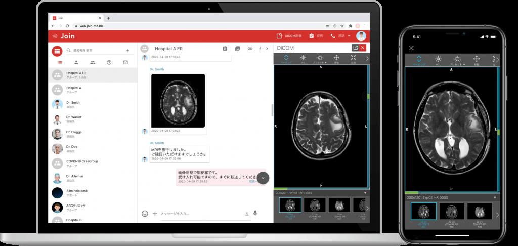 医療関係者間コミュニケーションアプリ「Join」